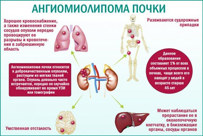 Ангиомиолипома почки: причины, симптомы, диагностика и лечение