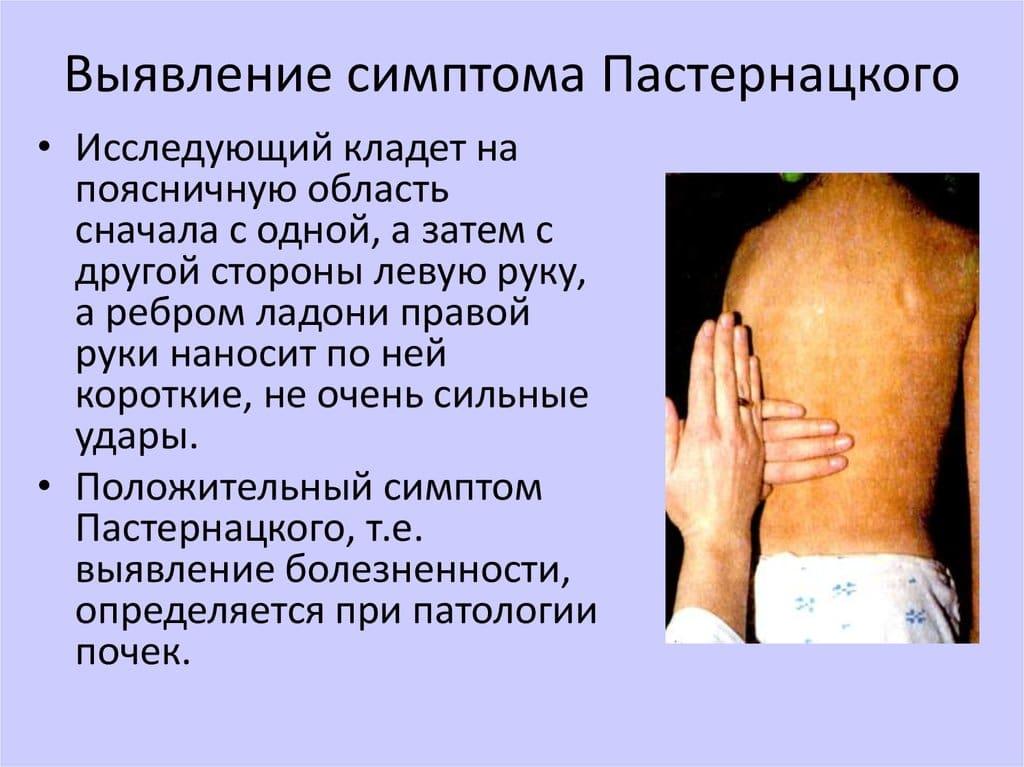 Симптом пастернацкого — что это такое, диагностика и лечение. симптом пастернацкого — что это, причины, лечение симптом поколачивания отрицательный с обеих сторон - стопаллергия
