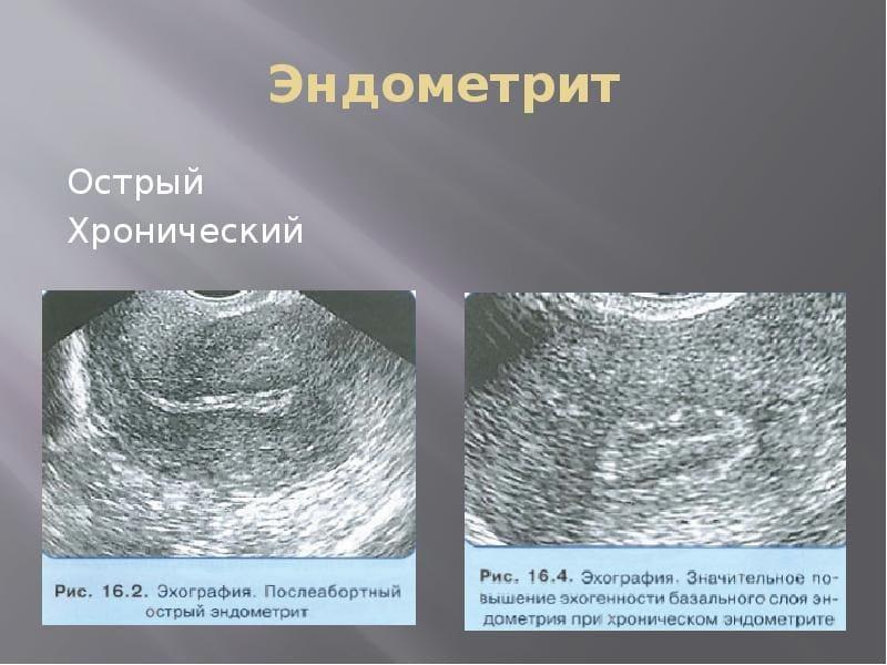 Эндометрия матки что это такое доступным языком при климаксе