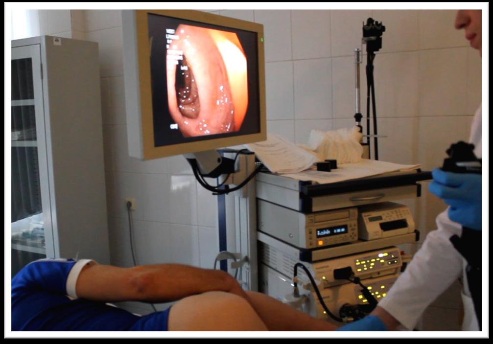 Колоноскопия. что такое колоноскопия, показания, какие болезни выявляет :: polismed.com