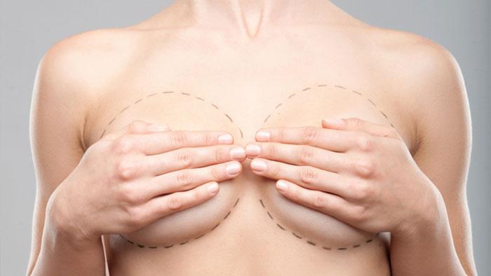 Маммопластика груди: виды, подготовка к операции, выбор имплантов, цены и возможные проблемы