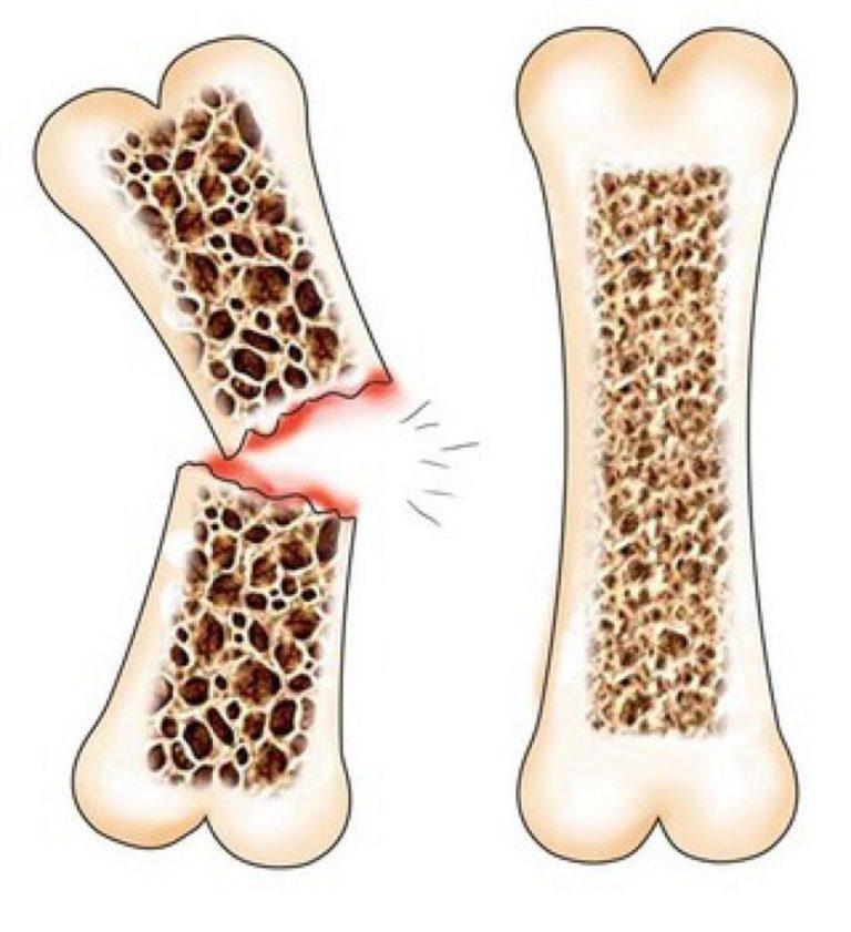Остеопороз - лечение, симптомы, признаки и диагностика | все о заболевании костей