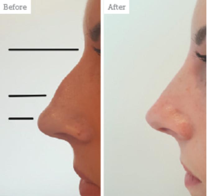 Ринопластика седловидного носа - показания, стоимость, фото до и после | ринопластика носа