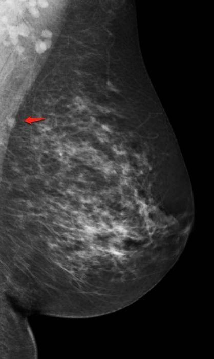 Маммография - что это: как и где делают исследование молочной железы