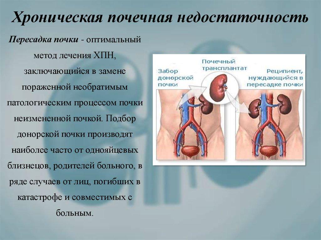 Признаки почечной недостаточности у женщин, диагностика и лечение, симптомы, признаки