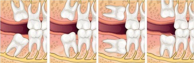 Что делать с зубами мудрости: оставить и лечить или удалить?