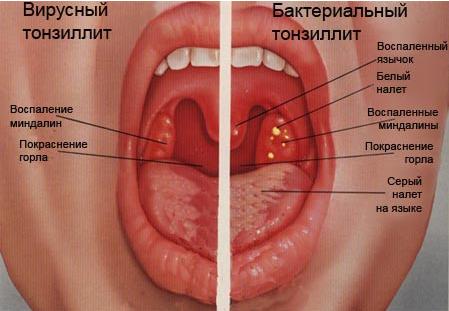 Ларингит острый и хронический - лечение, симптомы, причины