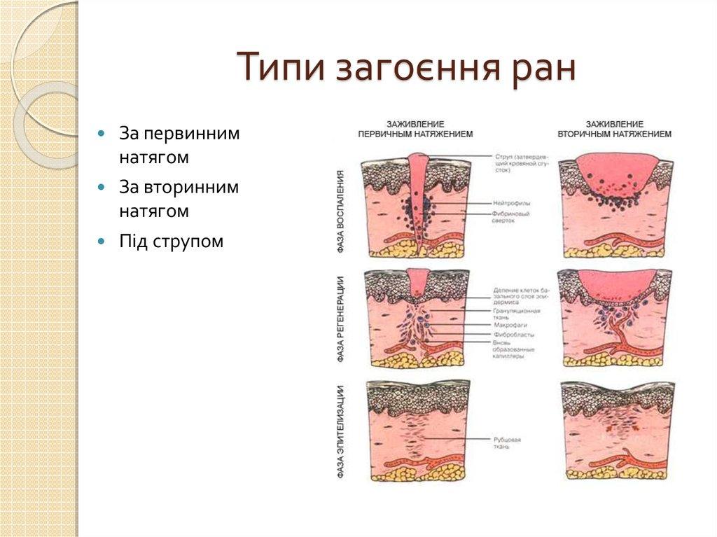 Грануляция тканей после операции. грануляция – один из процессов заживления раны. как выглядит грануляционная ткань