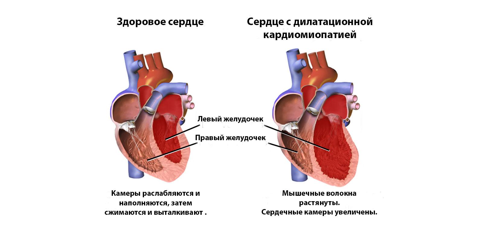 Дилатационная кардиомиопатия — википедия. что такое дилатационная кардиомиопатия