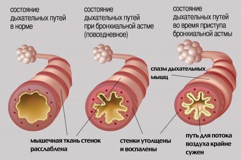 Обструкция дыхательных путей – лечение, первая помощь