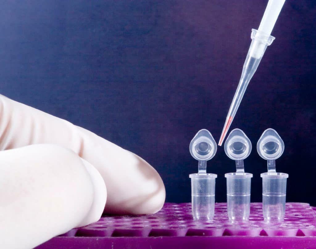 Где и как сделать тест на коронавирус