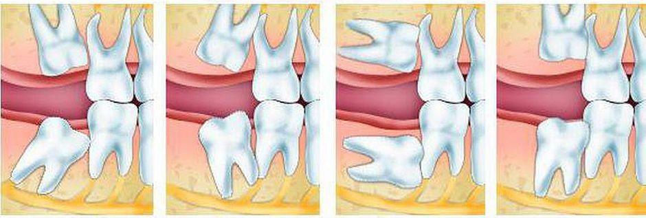 Симптомы, позволяющие распознать, когда растет зуб мудрости