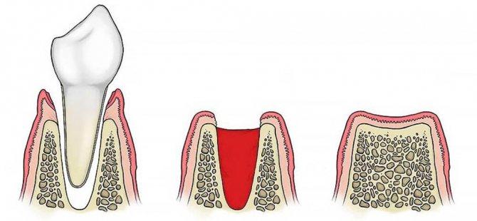 Что это такое альвеолит легких, какой прогноз жизни больного