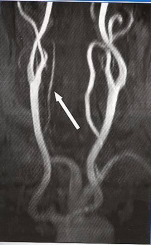 Причины, симптомы и лечение гипоплазии правой позвоночной артерии