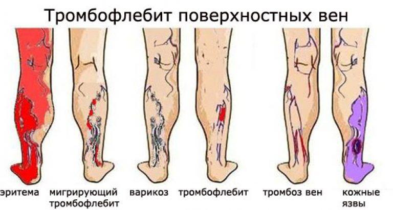 Тромбофлебит нижних конечностей: симптомы, фото и лечение
