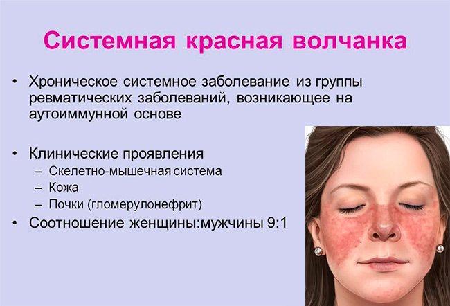 Системная красная волчанка: что это за болезнь, симптомы и причины, диагностика болезни