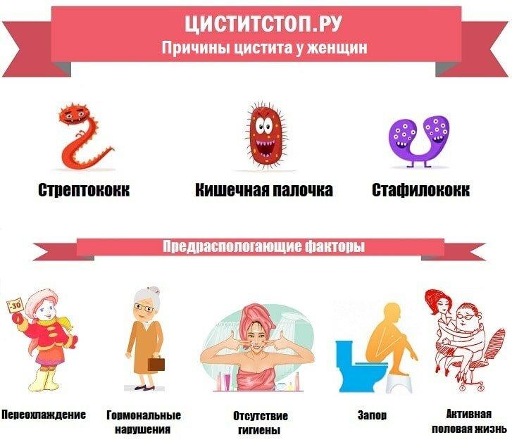 Цистит у женщин: что это, симптомы и лечение, причины