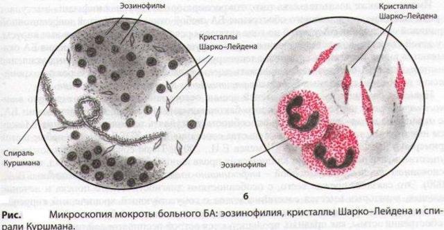Методы лечения ржавой мокроты в зависимости от причин