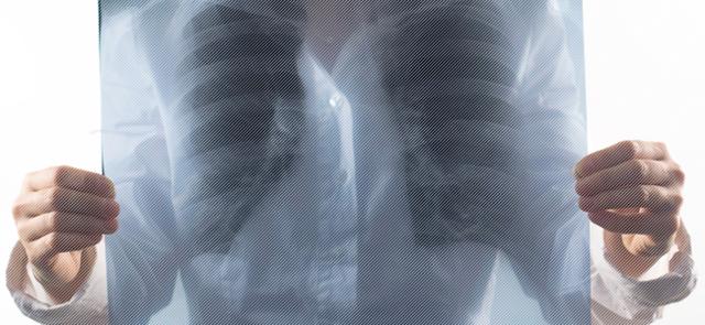 Что такое туберкулема легких, каковы ее диагностика, лечение и степень заразности?