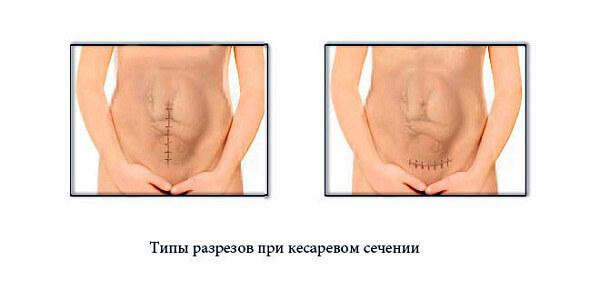 Кесарево сечение - что это и как проходит
