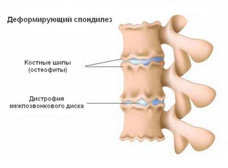 Спондилеза шейного отдела позвоночника | советы доктора