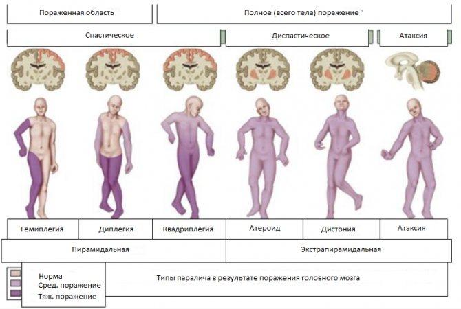 13 мифов о церебральном параличе