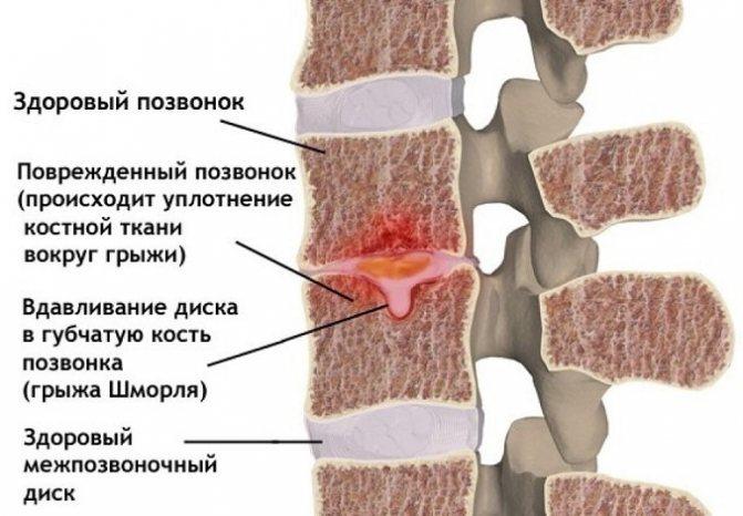 Грыжа шморля грудного отдела позвоночника: симптомы и лечение