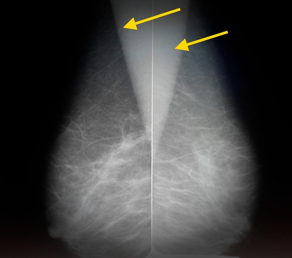 """Что лучше: маммография или узи молочных желез? чем отличаются. что точнее и эффективнее   ооо """"амадей клиник"""""""