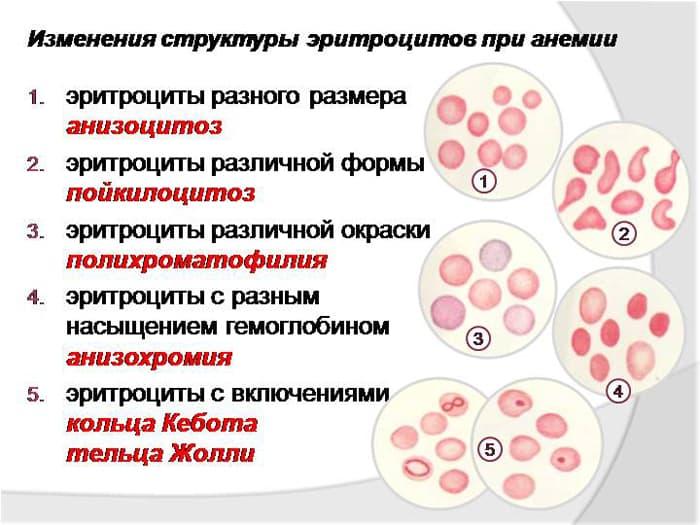 Пойкилоцитоз в общем анализе крови: диагностика, виды