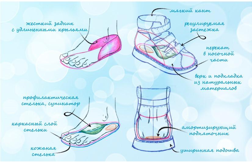 Стельки-супинаторы – разновидности, правила выбора и ношения