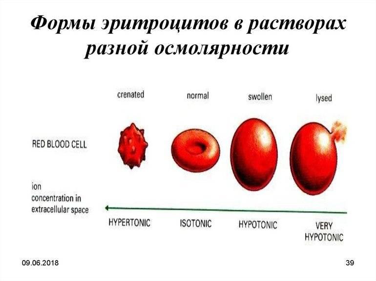 Причины пойкилоцитоза в общем анализе крови - решение проблемы