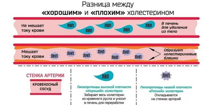 Липидный спектр (липидограмма): что это такое, показатели нормы, расшифровка