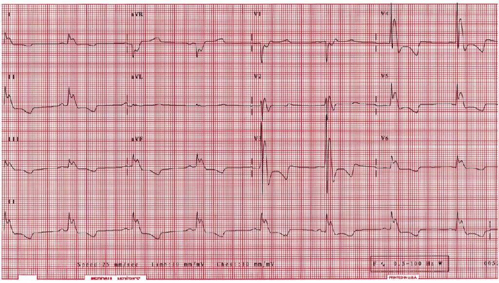 Брадикардия сердца — симптомы и лечение народными средствами