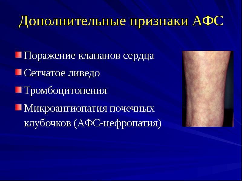 Антифосфолипидный синдром — википедия. что такое антифосфолипидный синдром