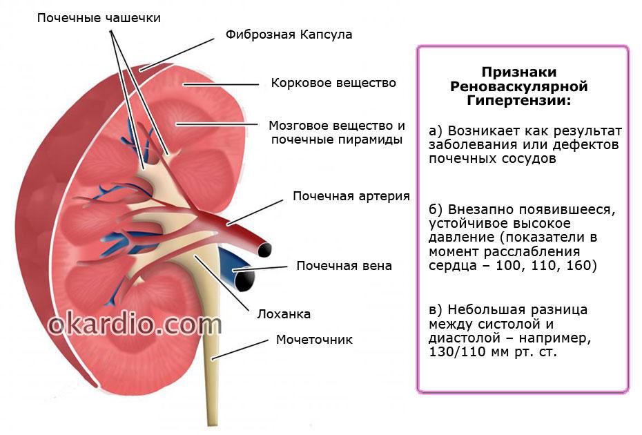 Реноваскулярная артериальная гипертензия: что это такое, симптомы, лечение
