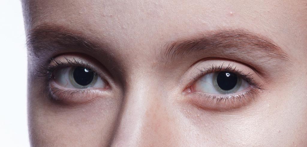 Мидриаз (расширенные зрачки): причины, симптомы, лечение