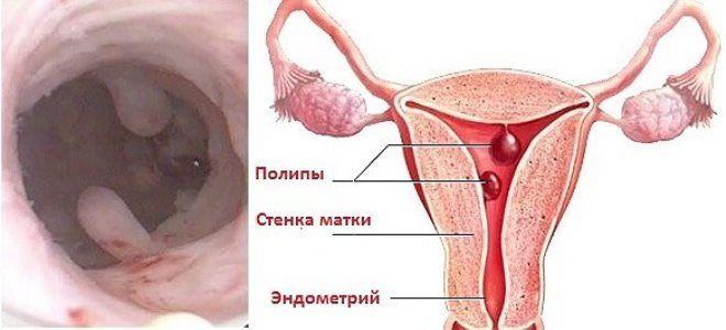 Полип эндометрия матки: причины, симптомы, как лечить