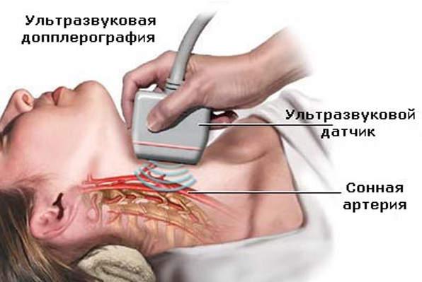 Уздг сосудов: как подготовиться к пациенту и что является ее результатом