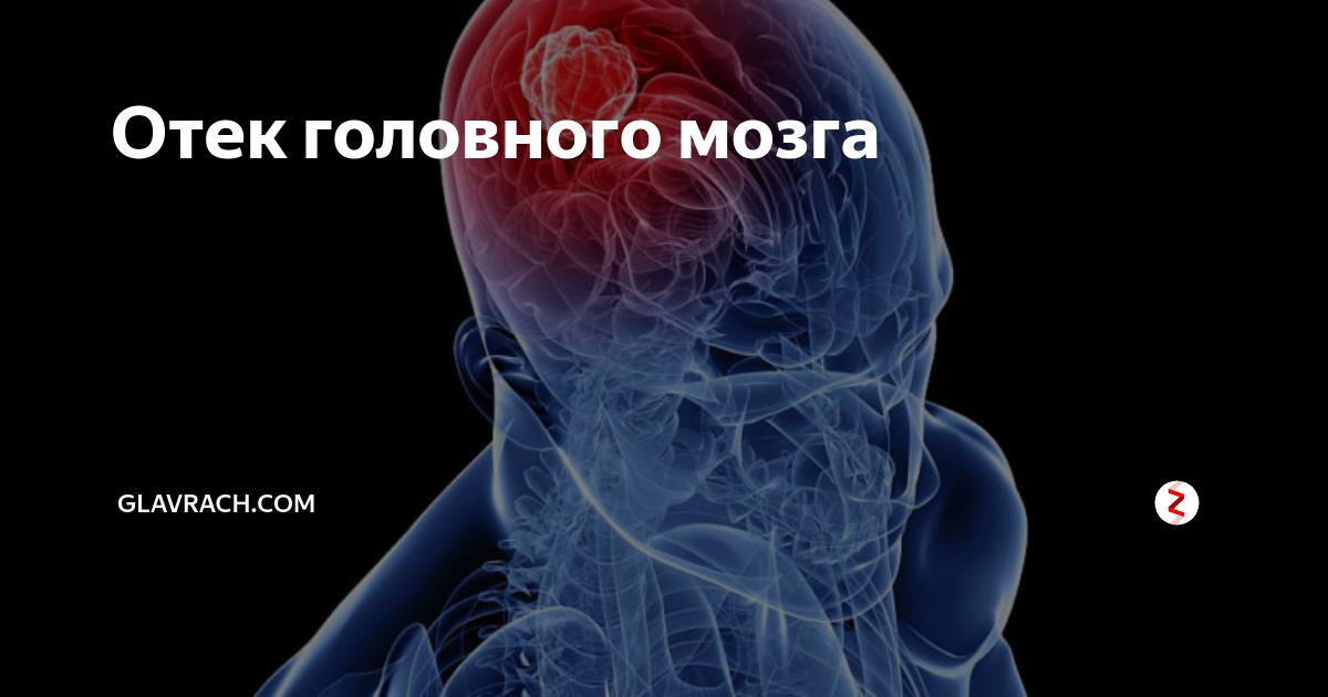 Отек головного мозга: причины, симптомы, последствия