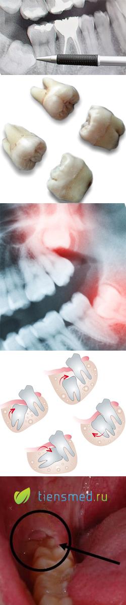 Верхний зуб мудрости: строение, особенности развития и как происходит удаление