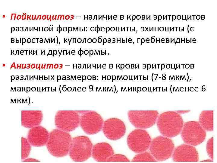 ✅ анизоцитоз в крови что это значит у взрослого - денталюкс.su
