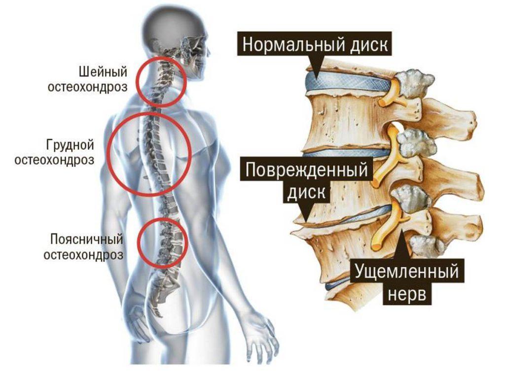 Дорсопатия позвоночника шейного и пояснично крестцового отдела