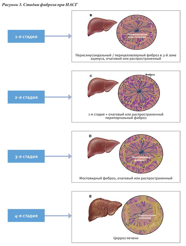 Методы лечения фиброза печени - твоя печенка
