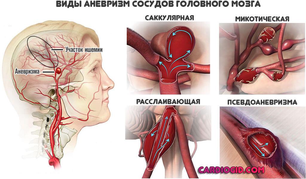 Особенности появления аневризмы сосудов головного мозга