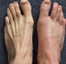 Подагра — признаки и лечение у мужчин, диагностика