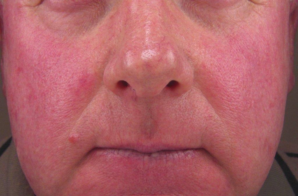 Что такое гиперемия кожи?