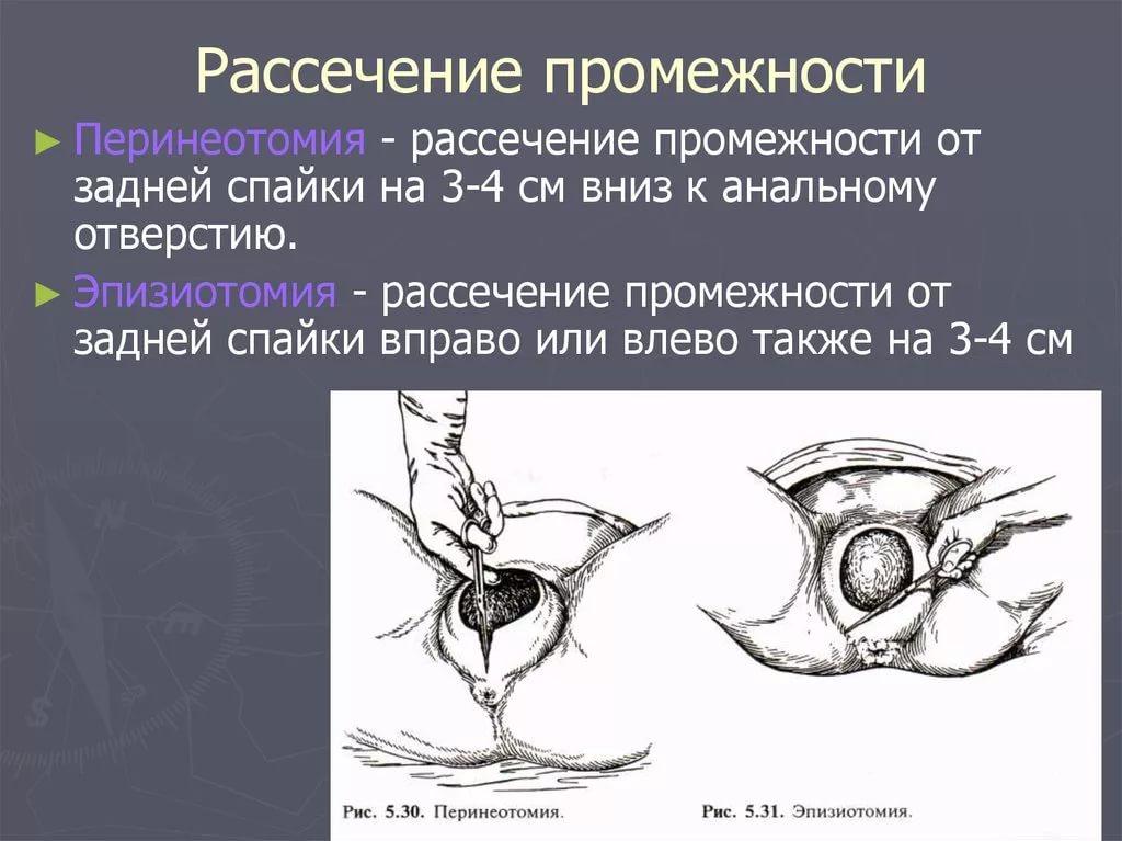 Эпизиотомия при родах: что это такое, когда ее делают, какие могут быть последствия?