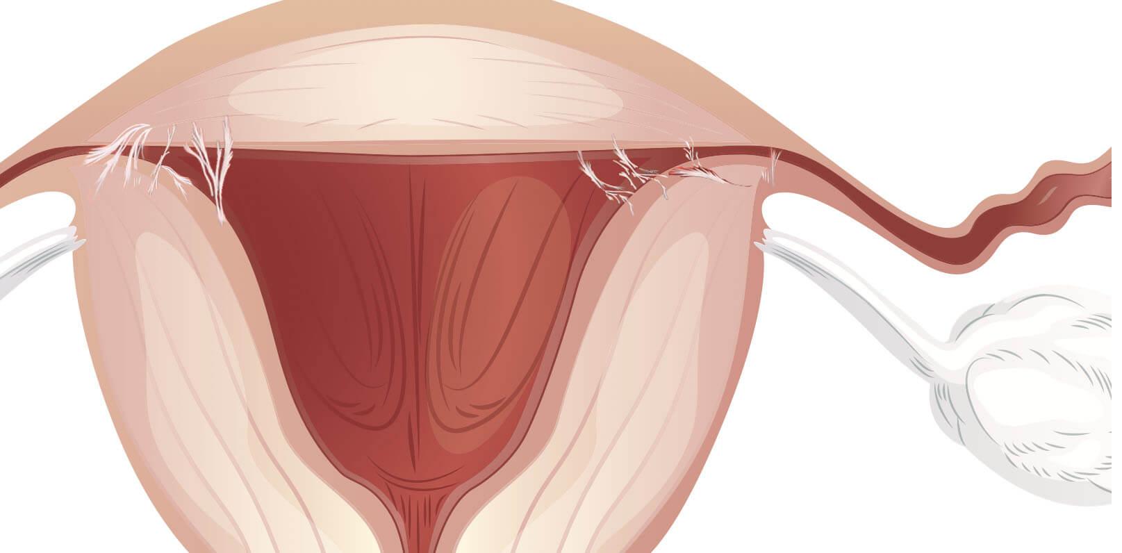 Непроходимость маточных труб: признаки и лечение в свао москвы