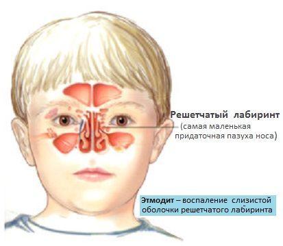 Этмоидит: симптомы и лечение у взрослых. чем лечить этмоидит