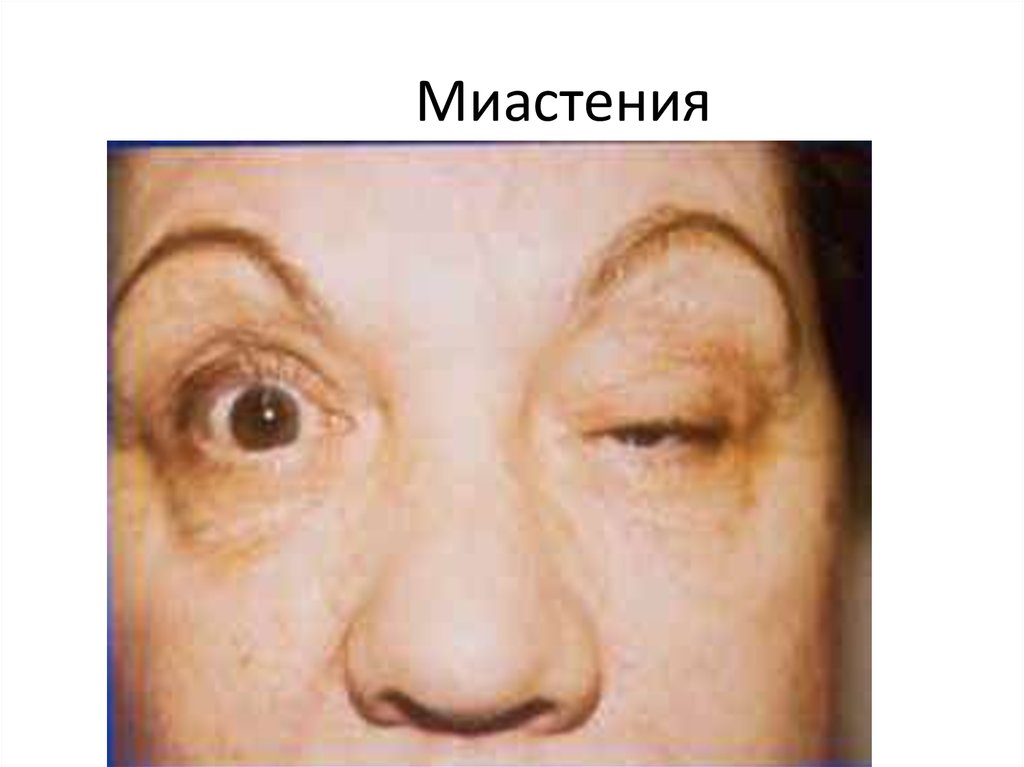 Что такое миастения: причины, симптомы и признаки, глазная и генерализованная форма миастении, диагностика и лечение в москве